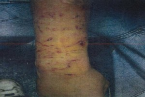 Photo of Luke Appleyard's arm after he had been attacked by a police dog.