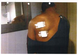 Photo of Stephon McCalla's back after a police Taser assault.