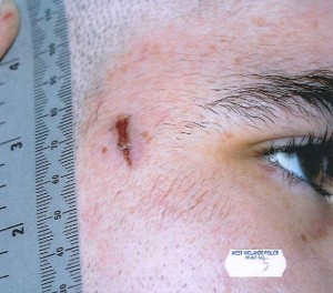 Are police the real football hooligans? This photo of a riot shield injury shows the damage they cause.