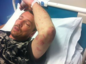 Photo of Paul Ponting in hospital.